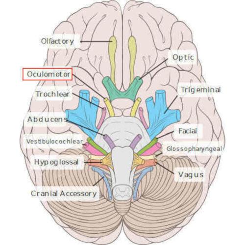 emergenza III nervo cranico