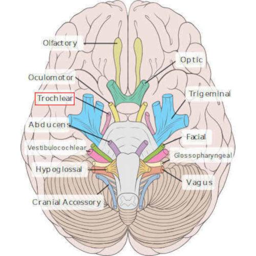 Nervo trocleare