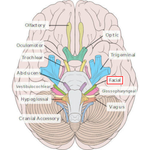 emergenza VII nervo cranico