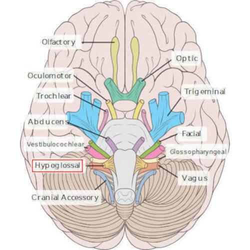 emergenza XII nervo cranico