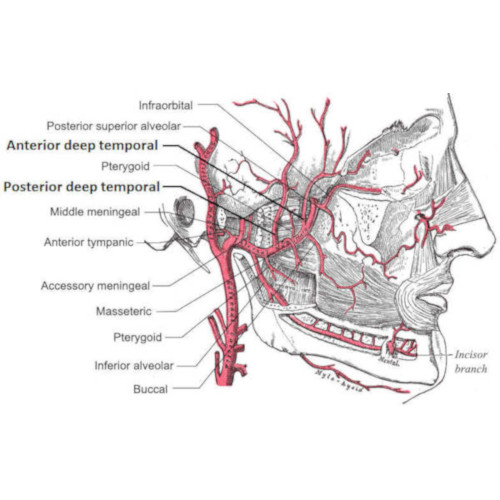 Arterite temporale di Horton o arterite gigantocellulare: descrizione