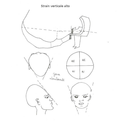 Strain verticale