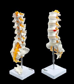 Colonna vertebrale lombare