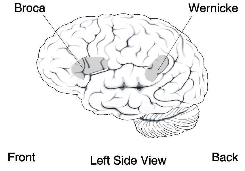 Aree di lesione disturbo del linguaggio