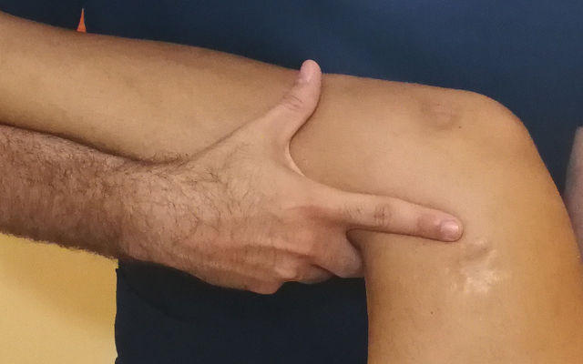 Disfunzione anca posteriore