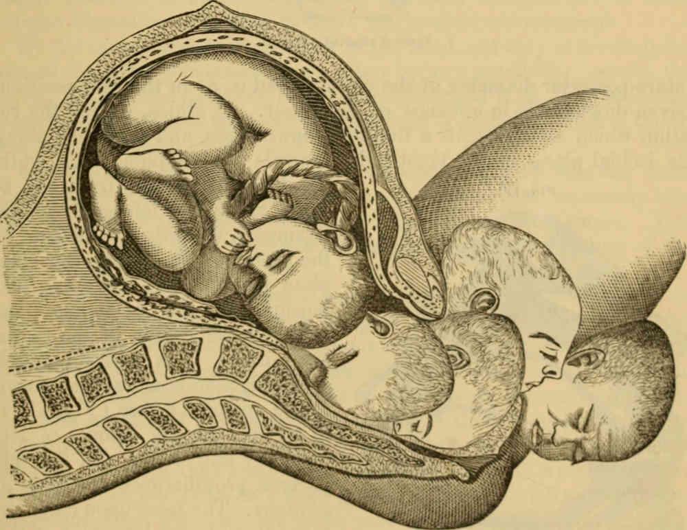 Meccanica del parto