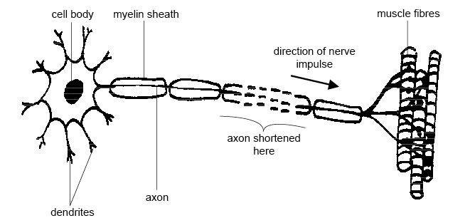 Motoneurone