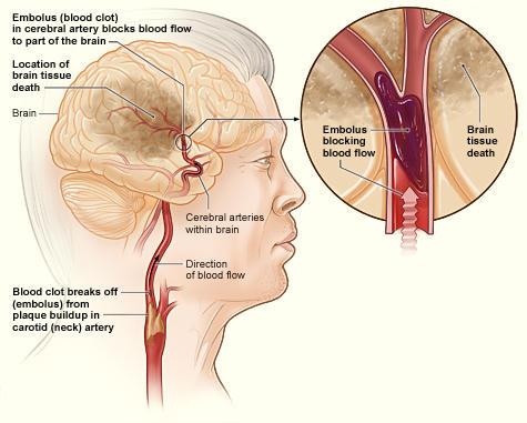 Stroke ischemico