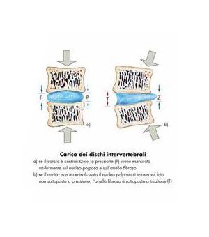 Poster colonna vertebrale disco intervertbrale