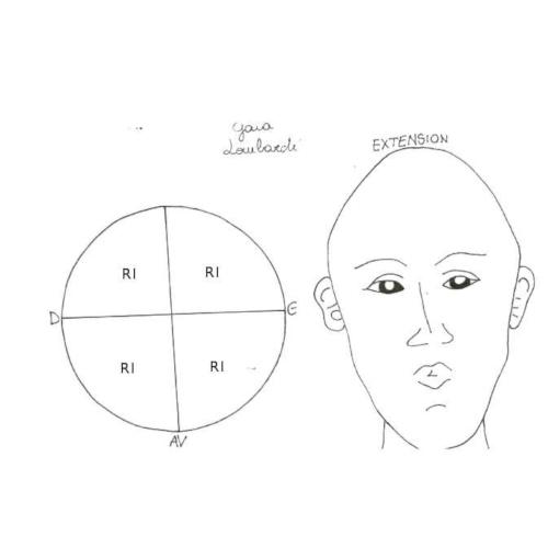 Estensione della base cranica: descrizione e correzione