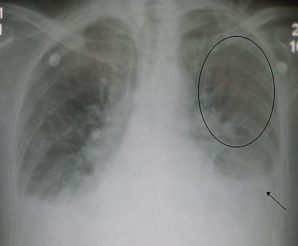 Edema polmonare