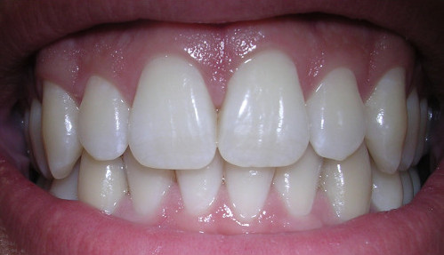 Malocclusione dentale