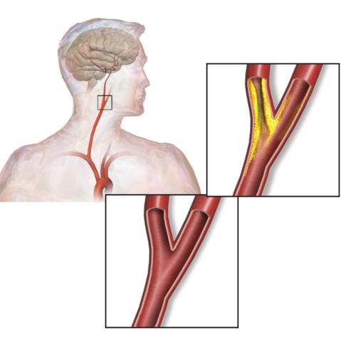 Stenosi arteria carotide