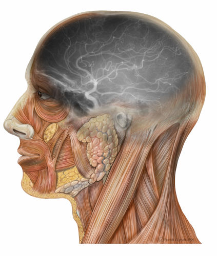 Angiografia carotidea