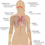 Les Lupus Eritematoso Sistemico: quali sono le sue caratteristiche?