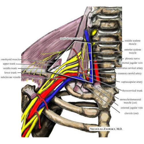 Sindrome dello stretto toracico superiore, cos'è, valutazione e trattamento