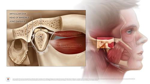 Menisco articolazione temporo-mandibolare