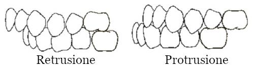 Protrusione e retrusione mandibola