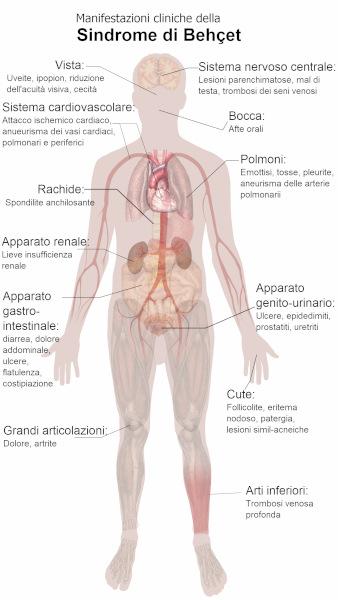 Sindrome di Behcet