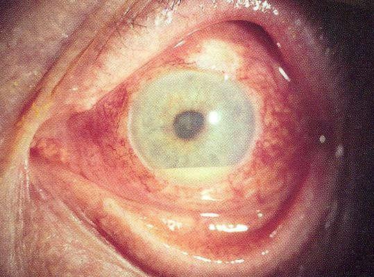 Ulcere oculari