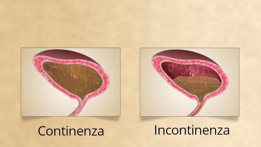 Continenza e incontinenza