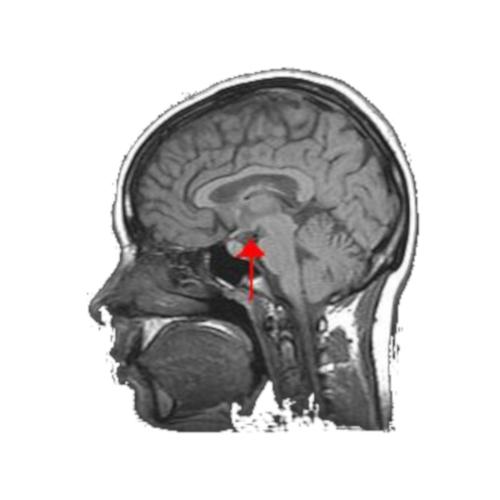 Ipotalamo: le sue funzioni e i sintomi provocati della lesione