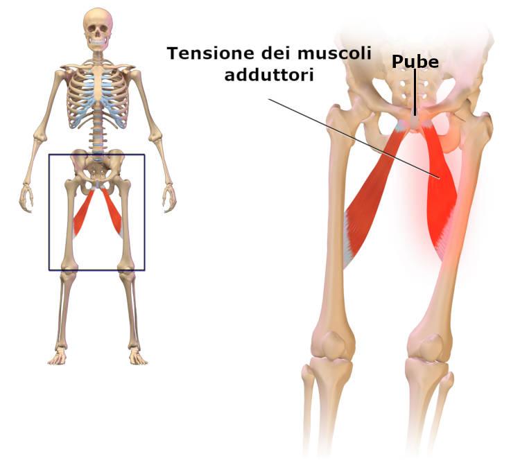 Pubalgia da tensione dei muscoli adduttori