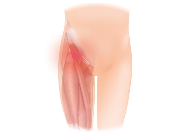 Il dolore inguinale è uno dei sintomi della pubalgia