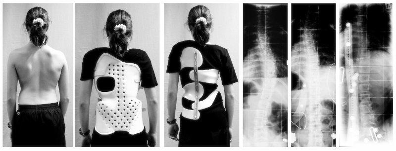 Correzione-della-scoliosi-con-busto-ortopedico